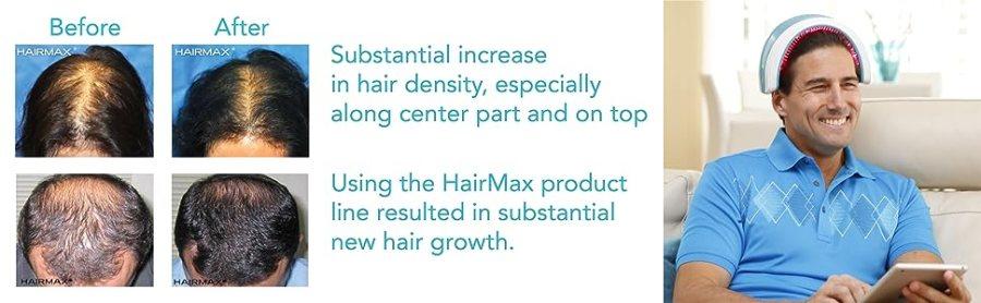 uso de hairmax