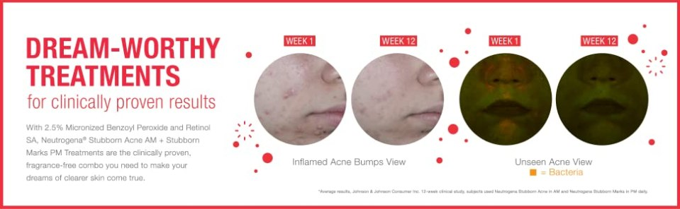 Clinically proven before and after results of Neutrogena Stubborn Acne Marks PM Retinol Treatment