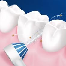 daha sağlıklı diş etleri için diş eti çizgisinin altında