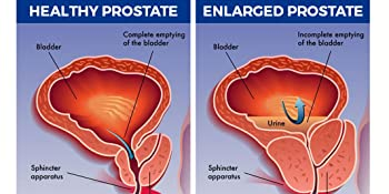 Dr Benjamin Rush Prostate support enlarged prostate bladder support