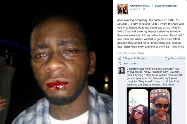 Christian, student z Konga został pobity w jednym z łódzkich klubów. Ochrona nie zareagowała