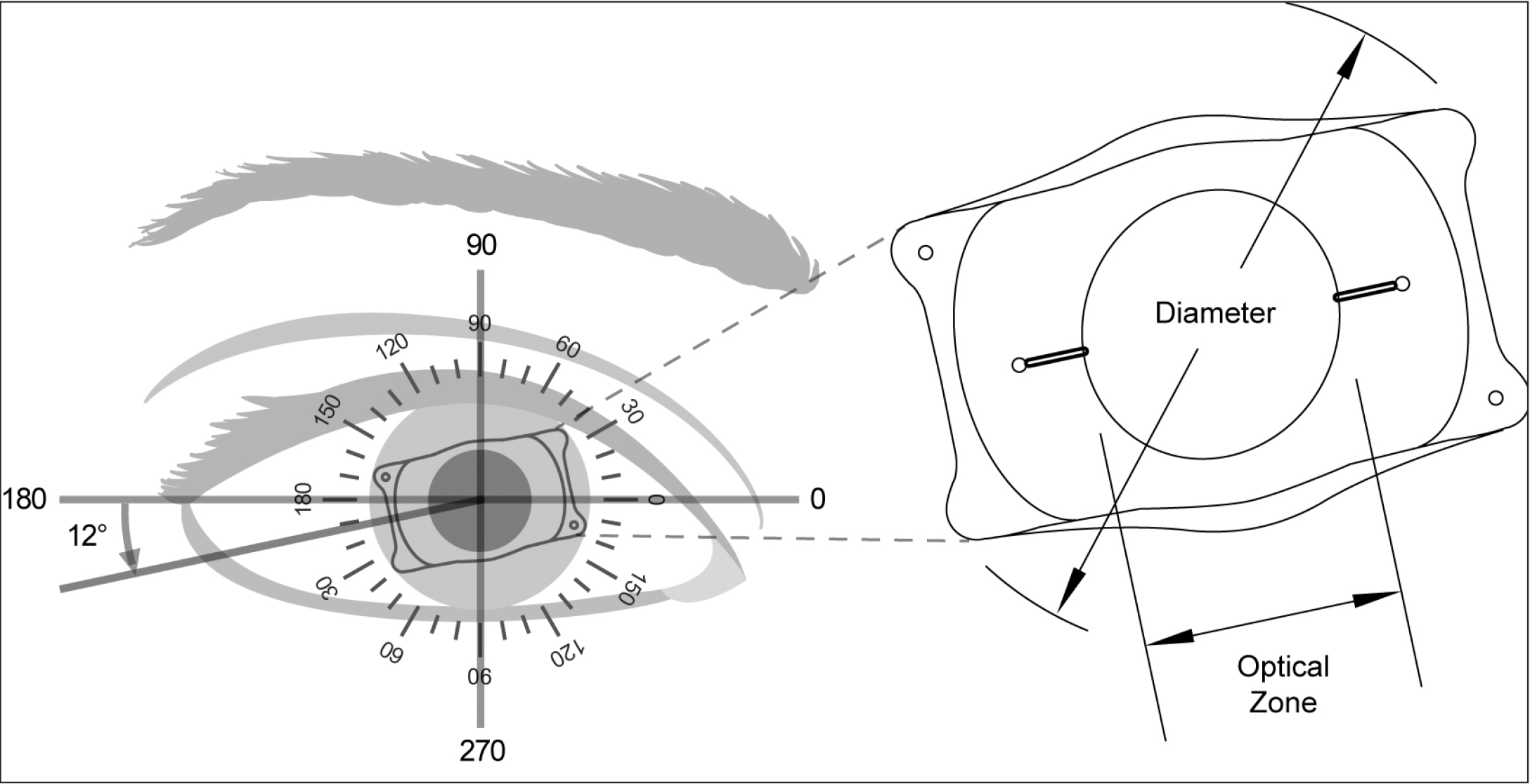 Rotational Stability And Visual Outcomes Of V4c Toric