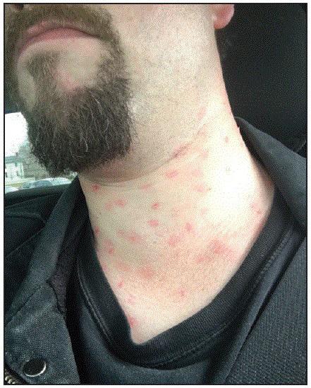 """Image of """"fake measles"""""""