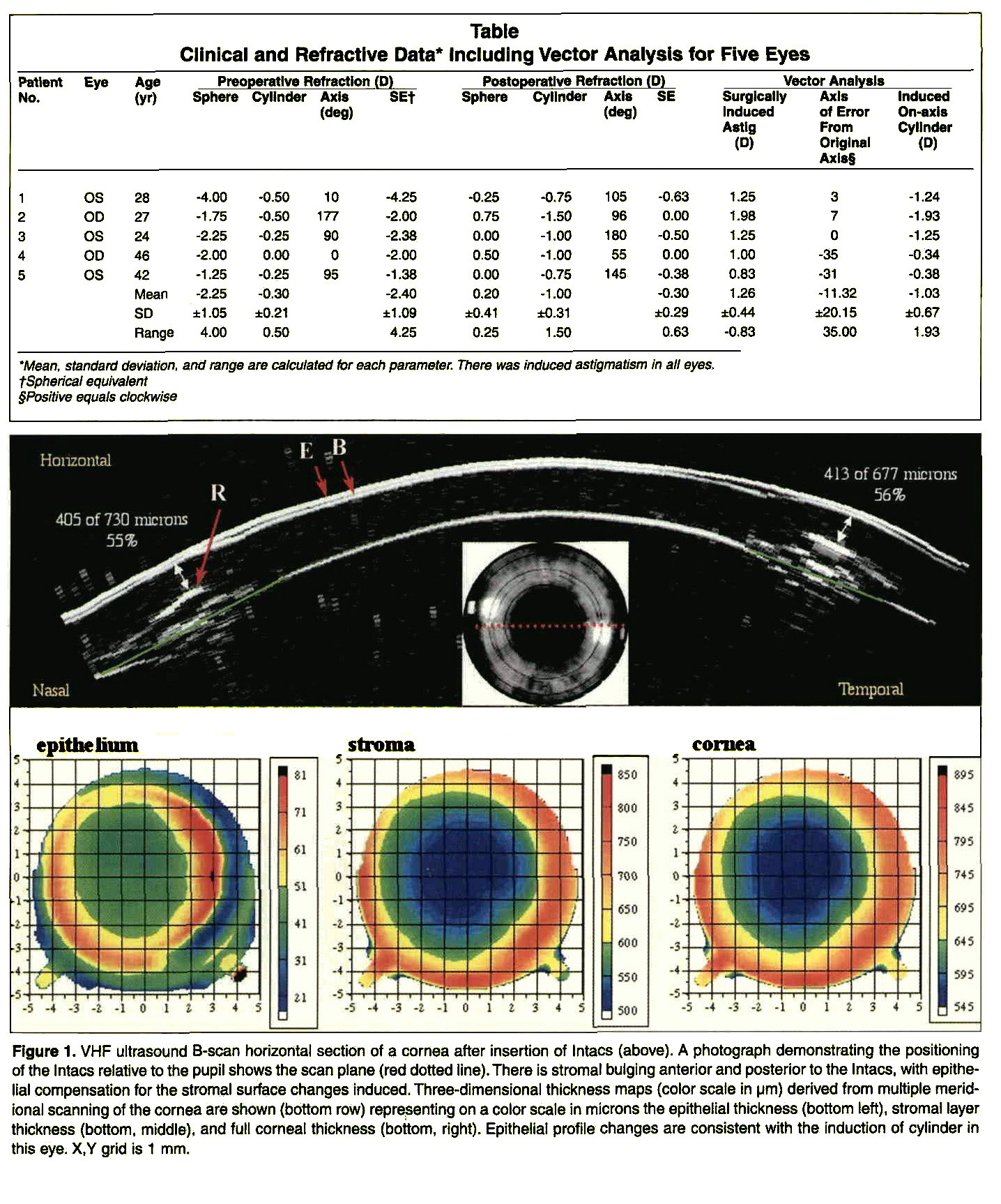 Epithelial And Stromal Changes Induced By Intacs Examined By Three Dimensional Very High