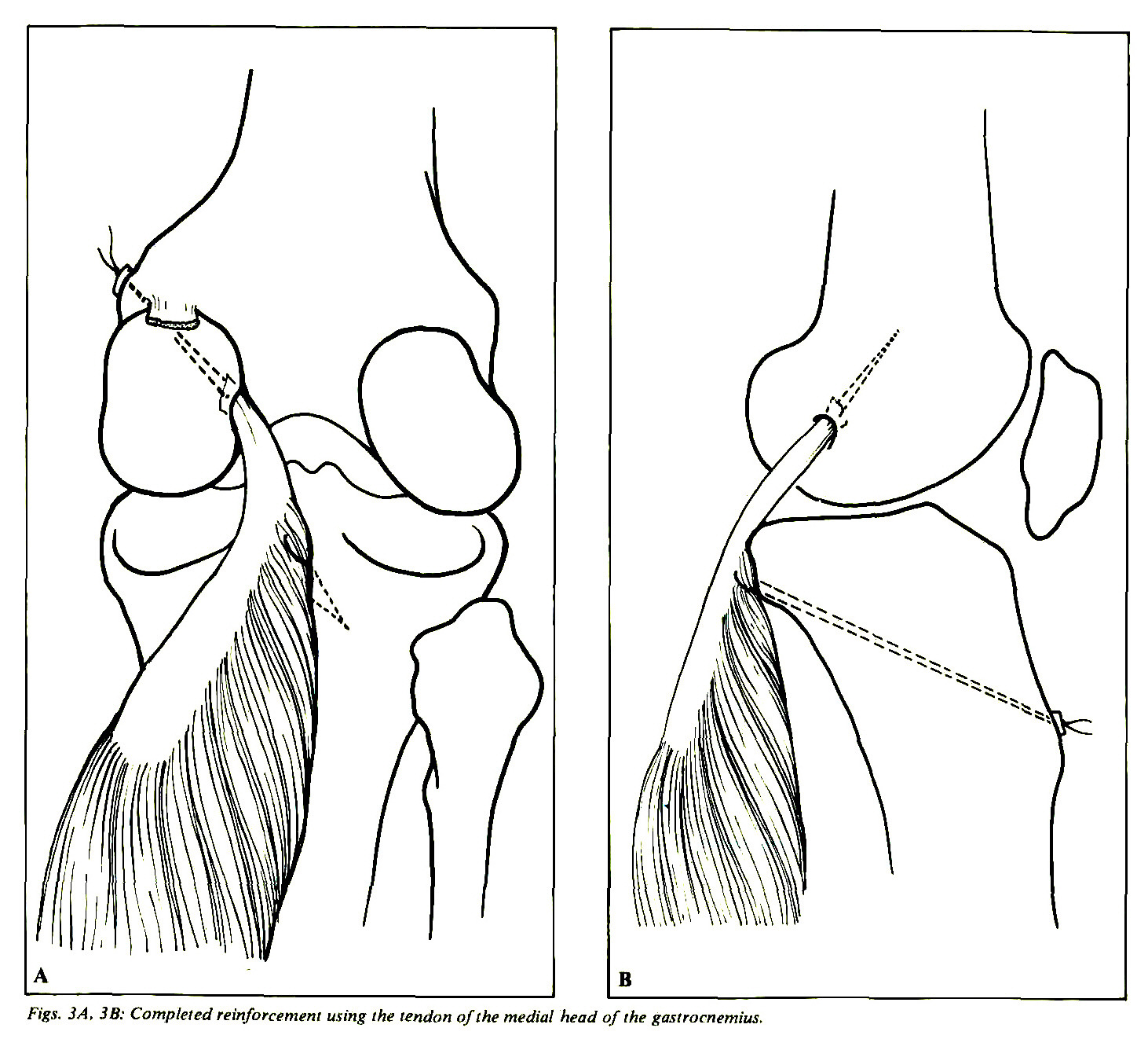 Interstitial Tears Of The Posterior Cruciate Ligament Of