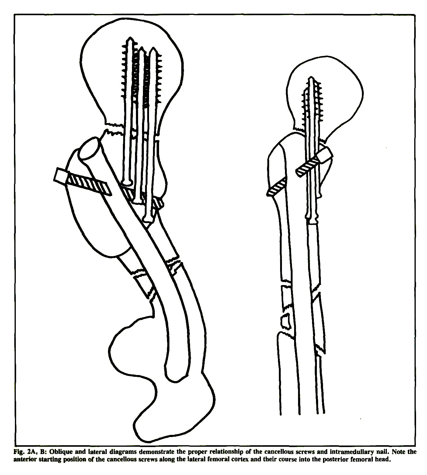 Concomitant Ipsilateral Fractures Of The Hip And Femur Treated With Interlocking Nails