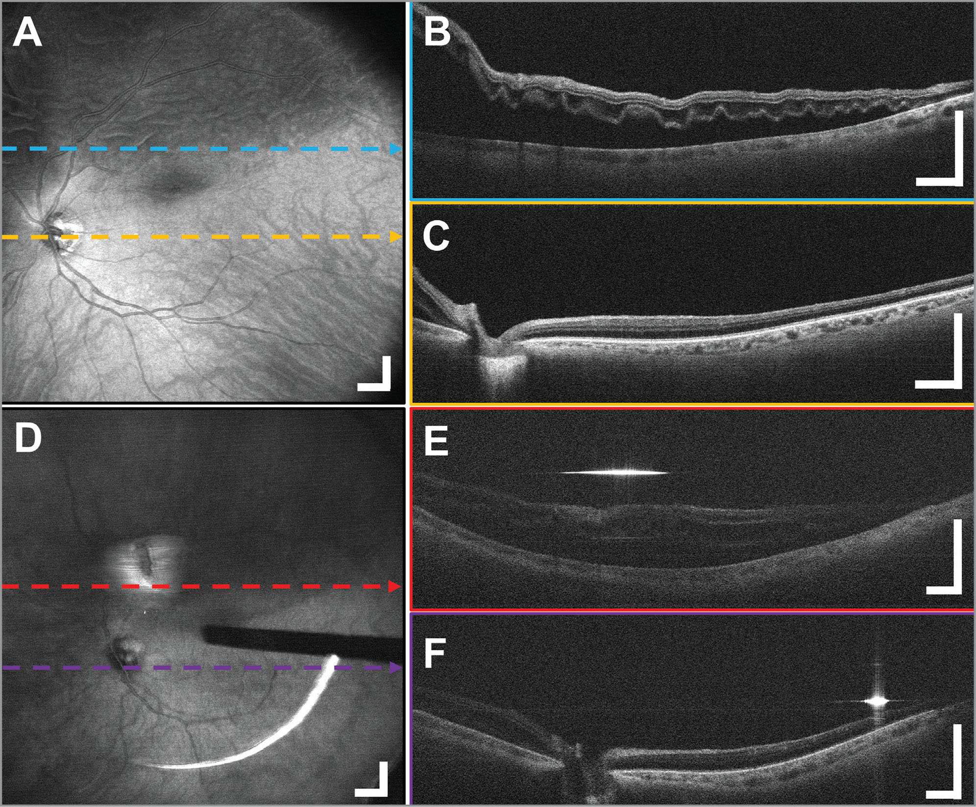 Microscope Integrated Intraoperative Ultrahigh Speed Swept Source Optical Coherence Tomography