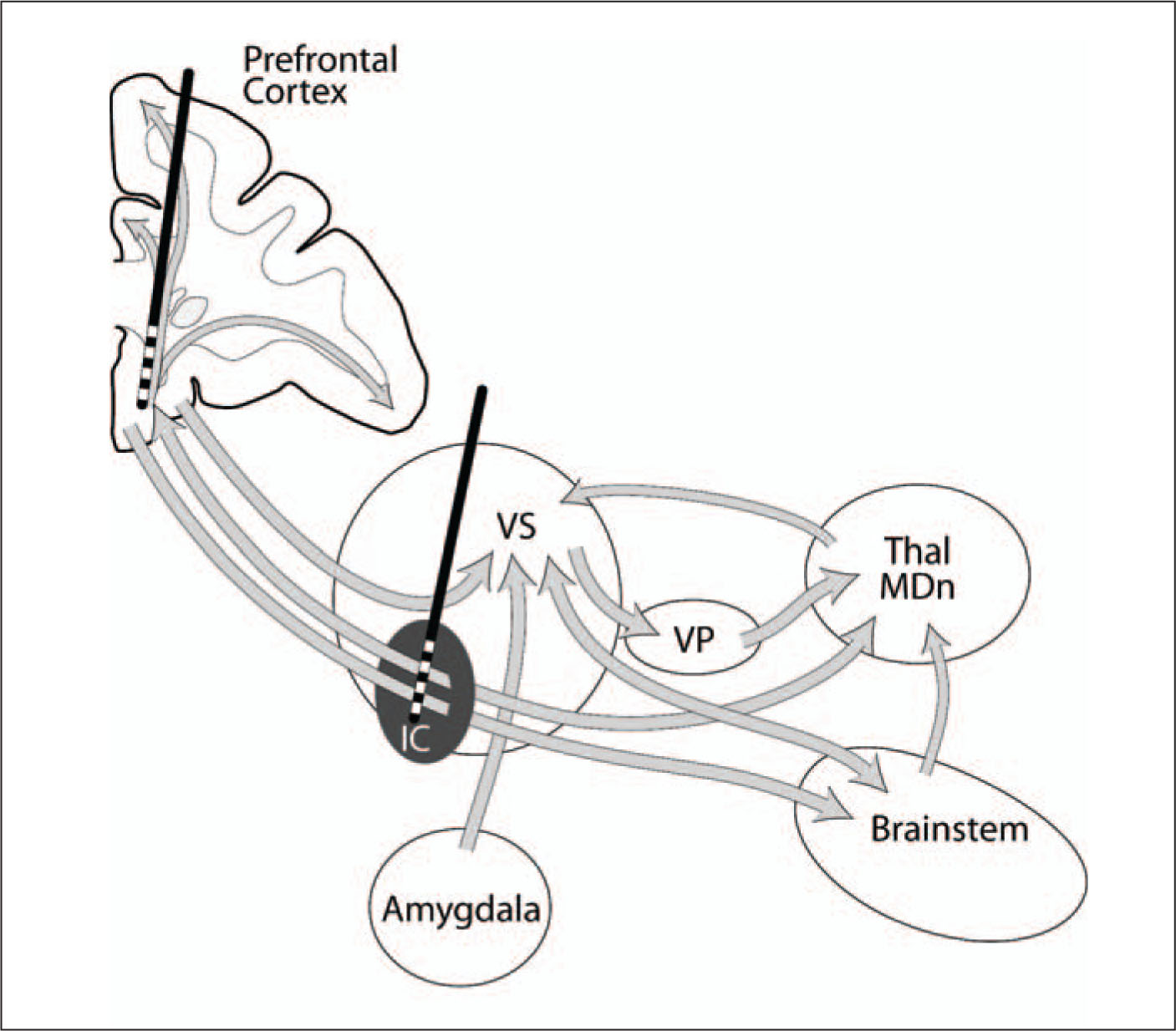 Neurocircuitry Underlying The Effects Of Deep Brain