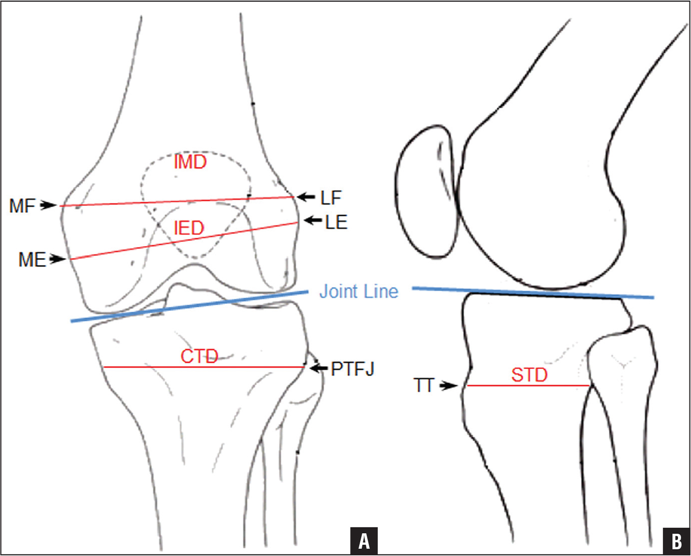 Calculating The Position Of The Joint Line Of The Knee
