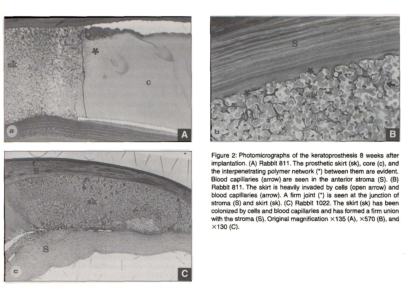 Preliminary Evaluation Of A Hydrogel Core And Skirt Keratoprosthesis In The Rabbit Cornea