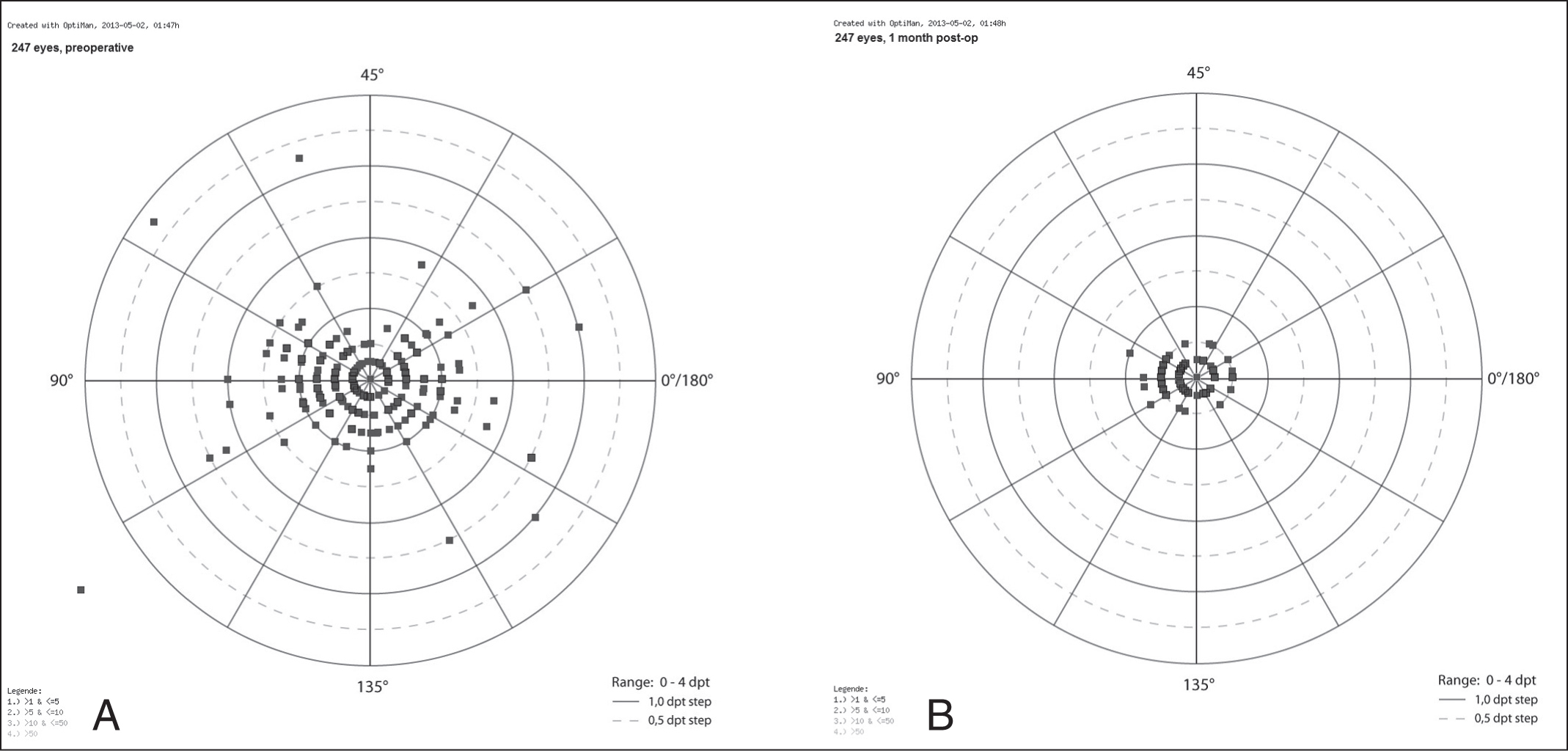 Early Clinical Outcomes Of Wavefront Guided Myopic Lasik