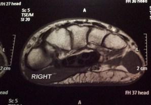 MRI-1