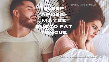 Sleep apnea- May be due to fat tongue