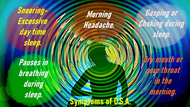 Symptoms of sleep apnea May be due to fat tongue.