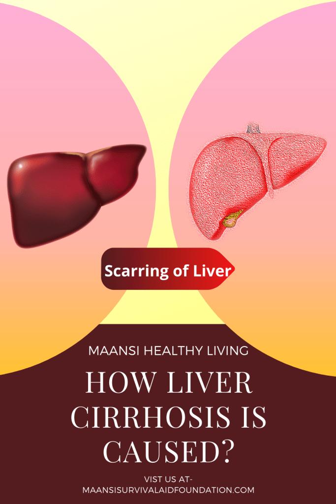 Liver corrhosis