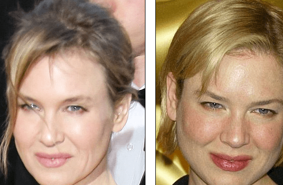 http://www.dailymail.co.uk/tvshowbiz/article-2284124/Oscars-2013-What-happened-Renee-Zellweger--Botox-overdose-Academy-Awards-viewers-startled-stars-youthful-look.html