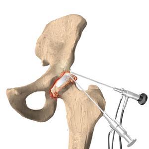 HipArthroscopy