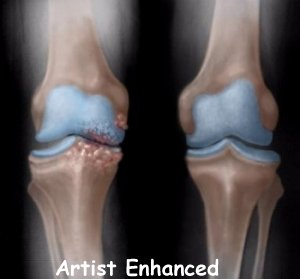 knee_osteoarth_diagnosis01