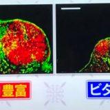 激しいトレーニングは免疫力を下げる、ビタミンB1、ナッツで免疫アップ