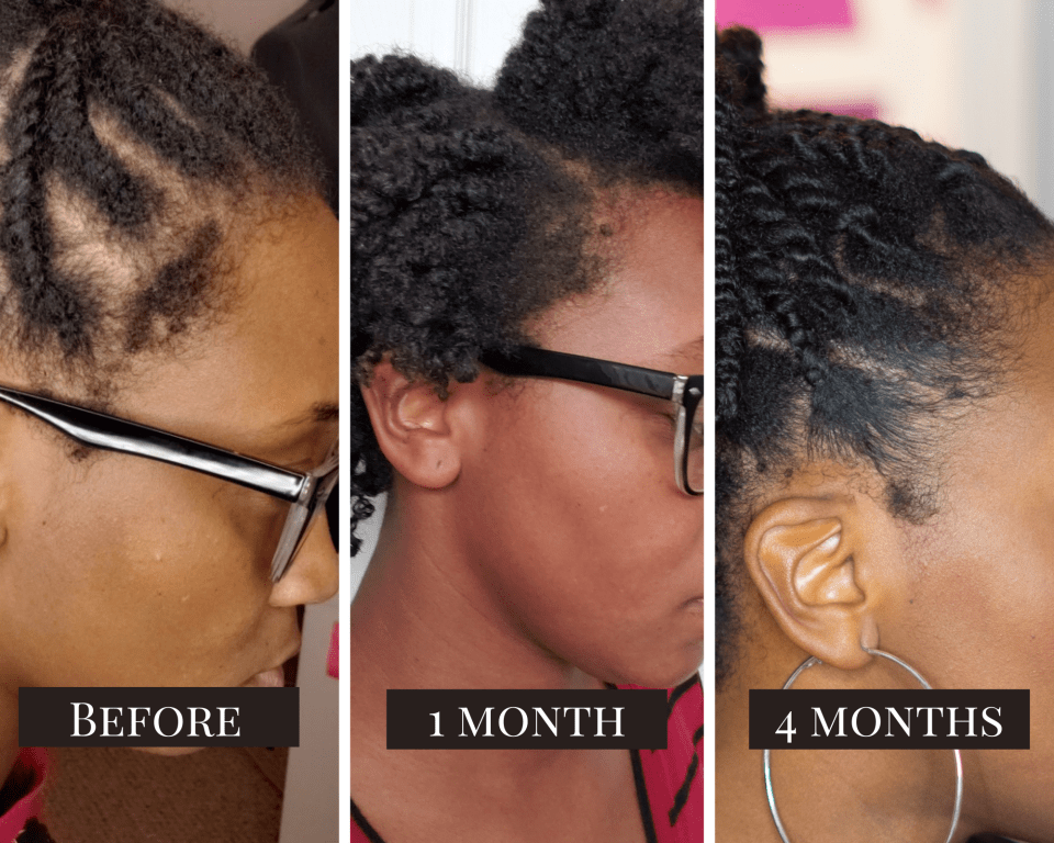 Natural Hair Edges