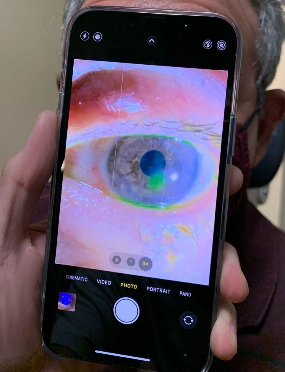Oftalmologista usando fotografia macro dos iPhones 13 Pro