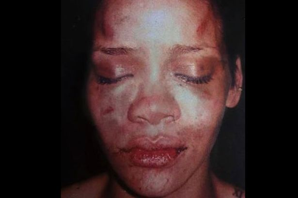 Rihanna-after-Chris-Brown-beat-her-in-2009