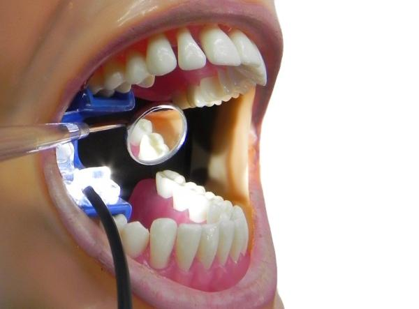 Bite Light Mouth Prop Attachment