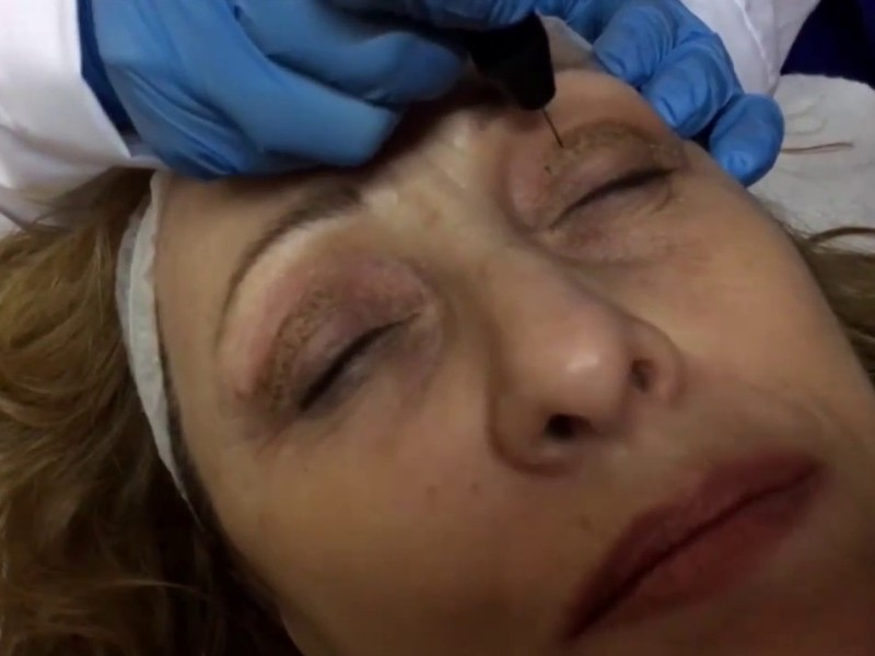 BlefaroPlasmage Madeira Holiday Package - Aesthetic treatment with Blepharoplasty + Plasmage (5)