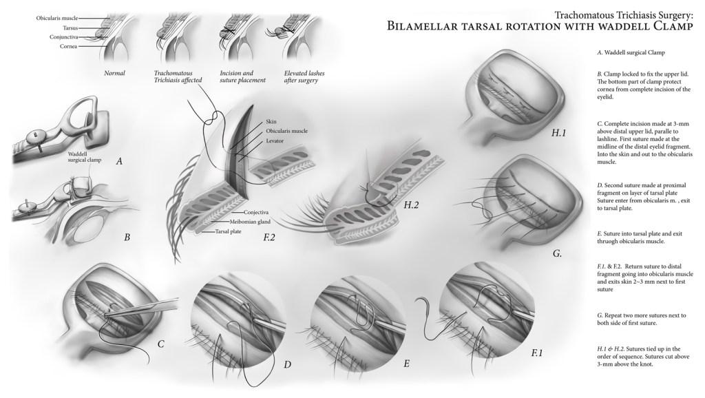 Trichiasis