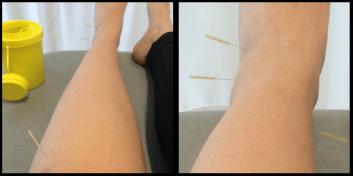 SAMLET - akupunktur