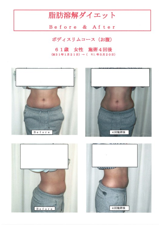 脂肪溶解ダイエット61歳女性4回施術