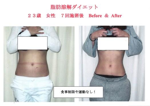 若い女性が太る原因