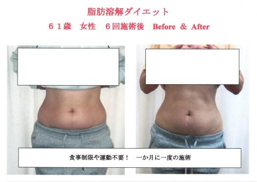 日本人と内臓脂肪型肥満