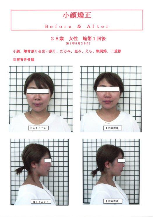 28歳 女性 小顔矯正 1回施術後
