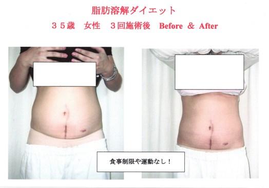 女性に多い洋なし型肥満
