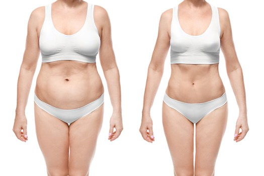 肥満と腰痛&膝痛の関係