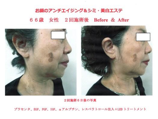お顔の美白効果・α-アルブチン