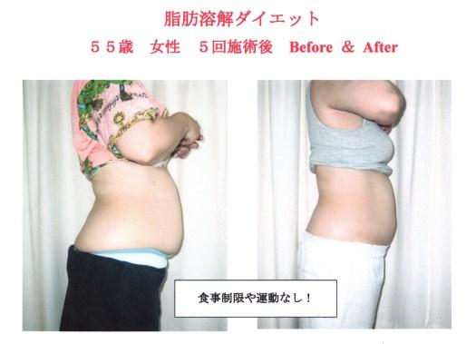 ダイエット、高知で綺麗に痩せると人気!!