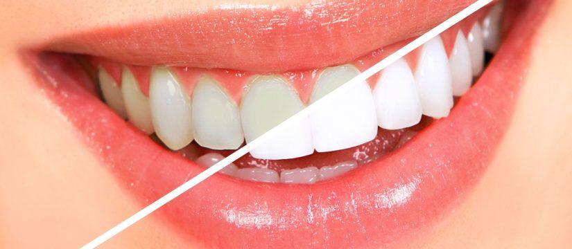 Want Whiter Teeth? | Magnolia Family Dental