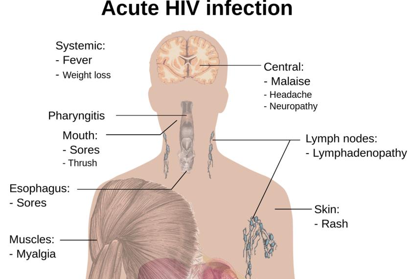 Penyakit pada Sistem Reproduksi Manusia dan Upaya Pencegahannya