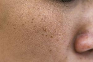 age spots in an aging woman