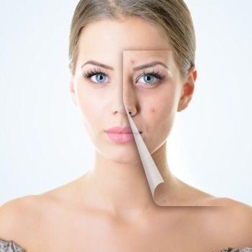 laser skin rejuvenation results