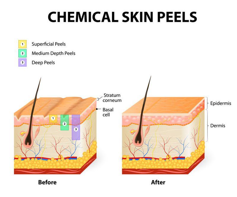 light medium and deep chemical peels