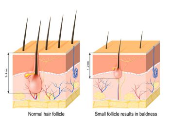 Hair loss (baldness). Normal hair follicle and skin with Alopecia. human skin.