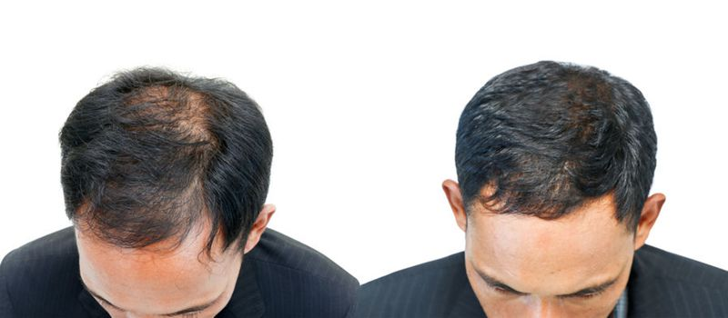 before and after alopecia treatment with prp hair restoration