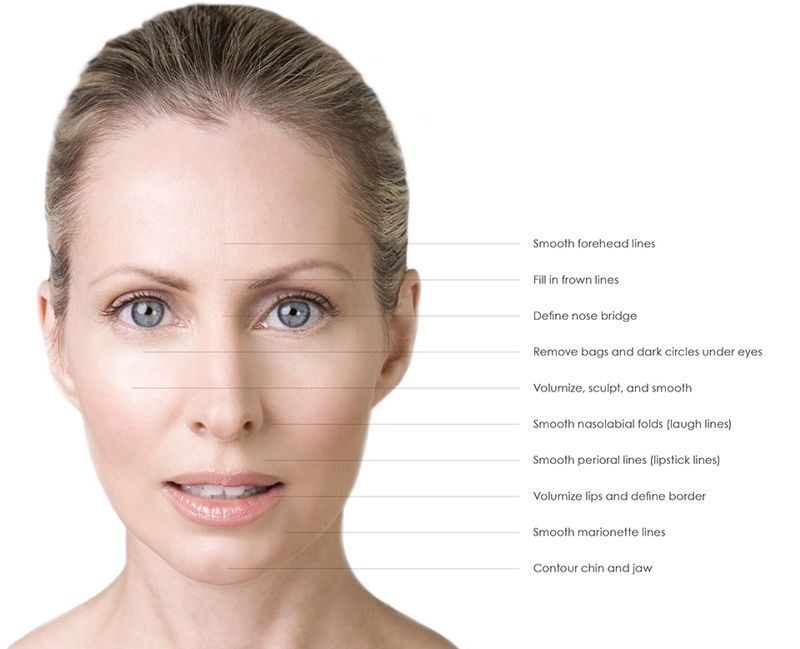 dermal filler treatment areas