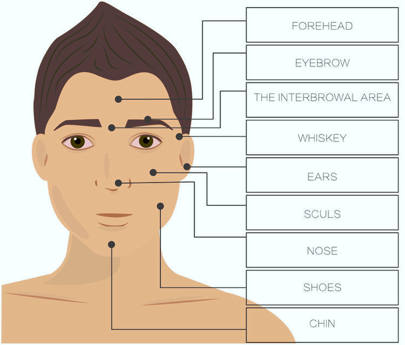 laser hair removal for men facial treatment areas