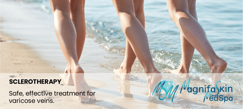 varicose vein treatment from magnifaskin medspa in wilmington delaware