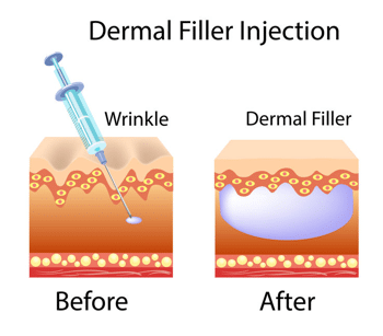 diagram showing how dermal fillers work