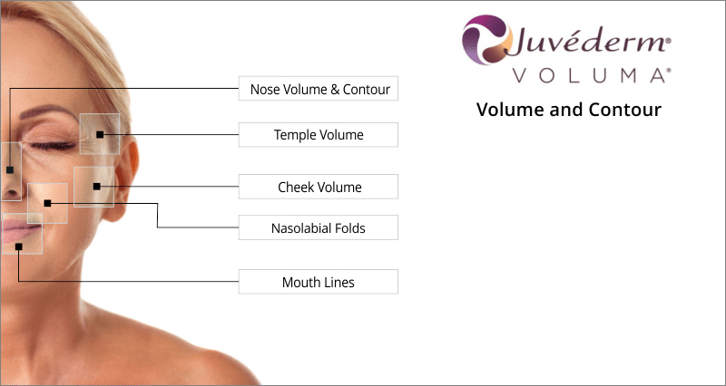 treatment areas juvederm voluma